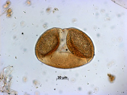 A grain of spruce (Picea) pollen. The 20μm scale bar is about 1/50 mm.